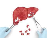 7 bước để giải độc gan an toàn và hiệu quả